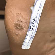 Swift Treatment Pictures 1
