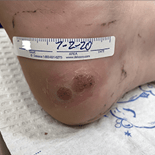 Swift Treatment Pictures 9